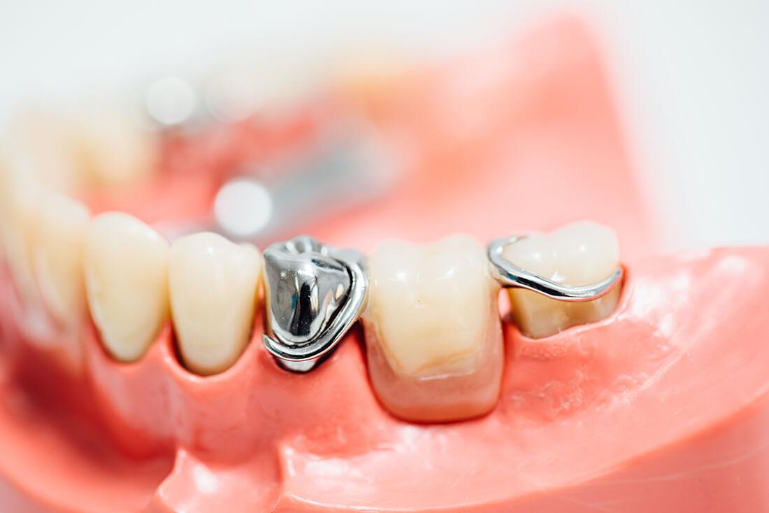Zahnarzt Leipheim - Manuel Braun - ästhetische Prothetik in der Praxis