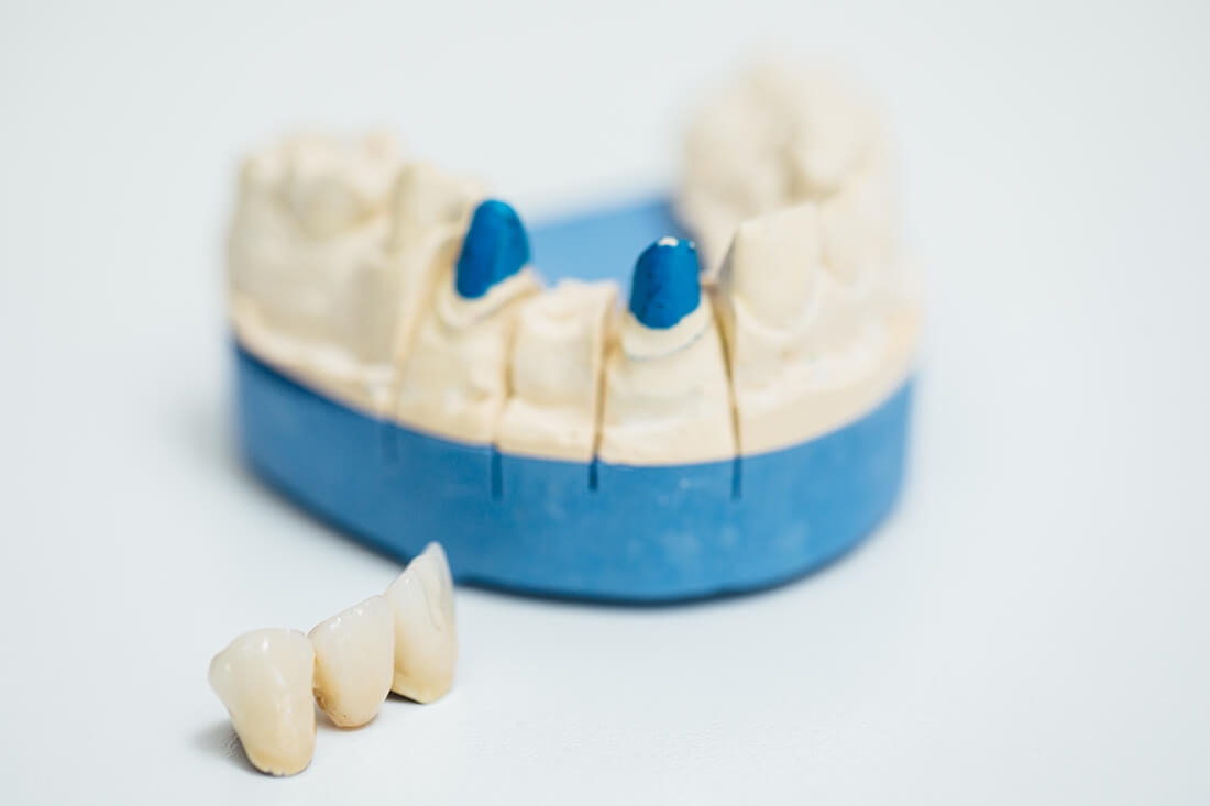 Zahnarzt Leipheim - Manuel Braun - Leistungen - Zahnersatz